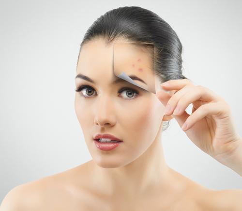 shutterstock 103689623 Phương pháp trị sẹo lõm hiệu quả tại nhà