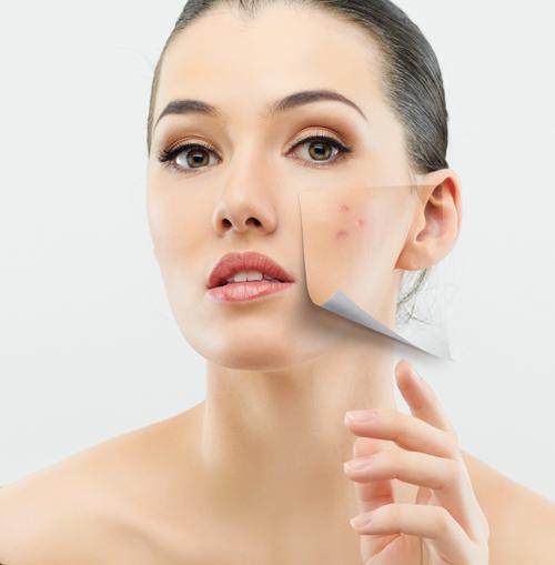 shutterstock 99802049 Phương pháp trị sẹo lõm hiệu quả tại nhà