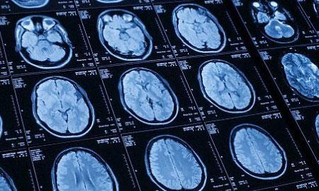 Phát hiện sớm tự kỷ ở trẻ nhờ phương pháp chụp cắt lớp não