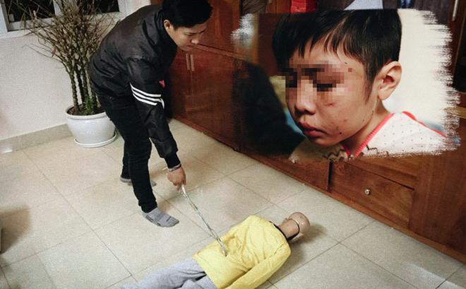 Cậu bé bị bố ruột và mẹ kế đánh rạn sọ não: Xót xa trong vô cảm?