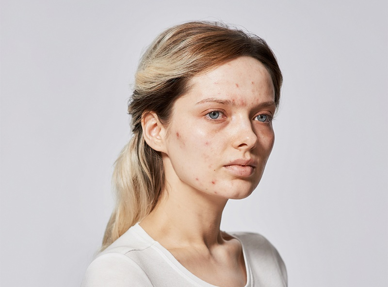 Em Ford is a beauty blogger. She has quite serius acne, but has learned to apply here makeup to conceal it. Photographed without any makeup at all and with full makeup. Photography By Amit Lennon Date: 9 July 2015