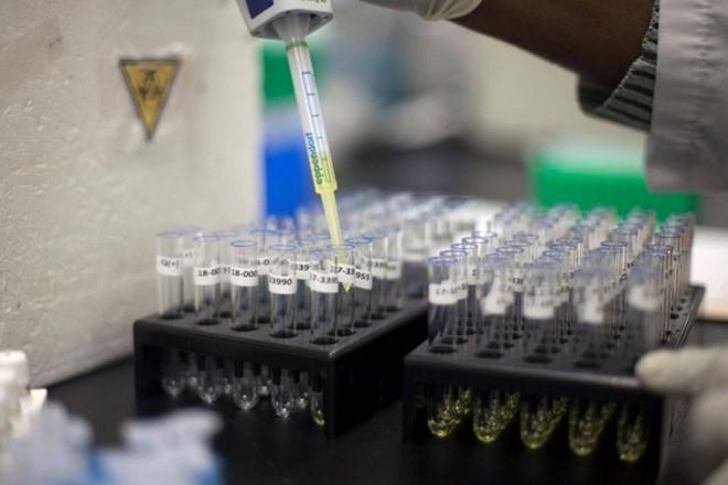 Nhật thử nghiệm phương pháp xét nghiệm nước tiểu phát hiện ung thư