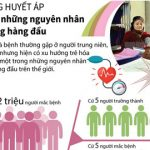 Bệnh tăng huyết áp – nguyên nhân gây tử vong hàng đầu