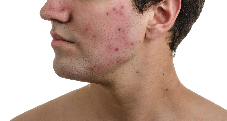 Acne, scars and keloids in the face of a man.