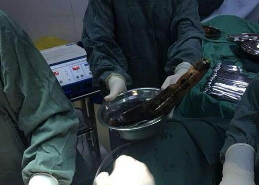 Người đàn ông nhét quả cà tím dài 30cm vào hậu môn để chữa táo bón