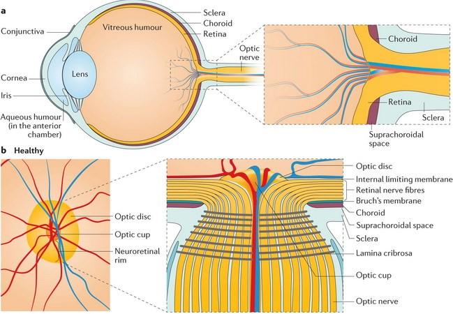 Xác định được 40 chuỗi ADN gây bệnh glaucoma dẫn tới mù lòa