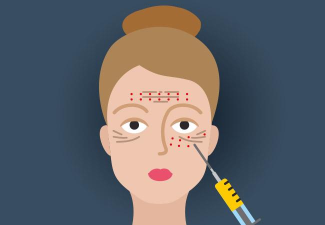 """Liệu pháp làm đẹp """"mặt nạ ma cà rồng"""" có thể khiến người dùng bị truyền nhiễm HIV"""