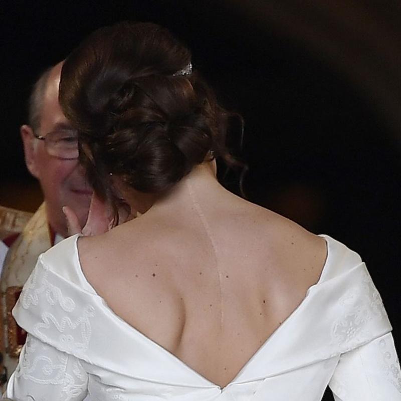 Với thiết kế cổ chữ V, gấp nếp ở vai và khoảng hở ở lưng để lộ đường phẫu thuật chữa trị chứng vẹo cột sống lúc cô 12 tuổi.