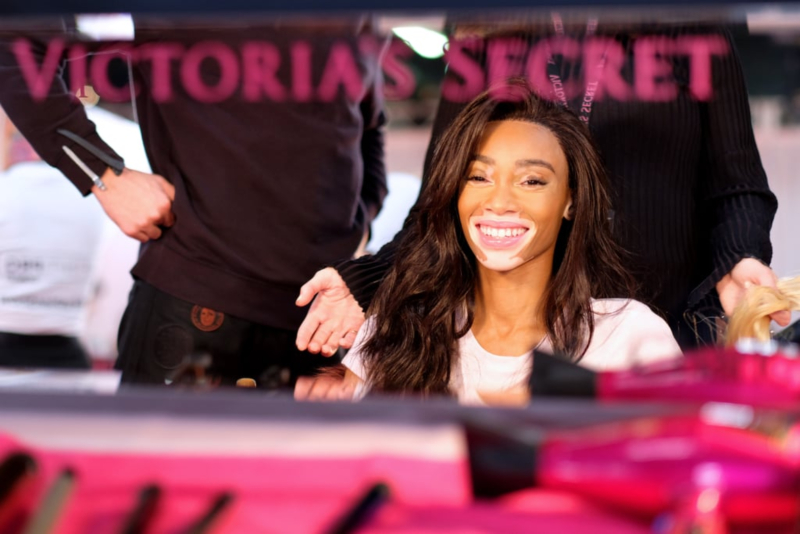 winnie-harlow-victoria-secret-fashion-show-2018-5