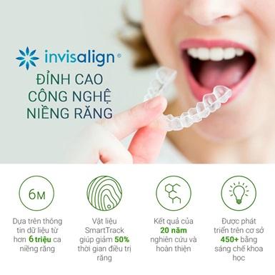 Invisalign – Bí quyết niềng răng chỉnh hô, móm, răng khấp khểnh cho người trưởng thành