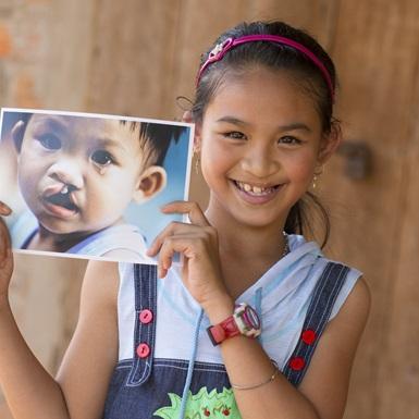 Thắp sáng nụ cười rạng rỡ cho trẻ thơ: phẫu thuật miễn phí cho trẻ em dị tật vùng hàm mặt