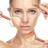 8 bí quyết dành cho người đang đau đầu vì mụn đầu trắng