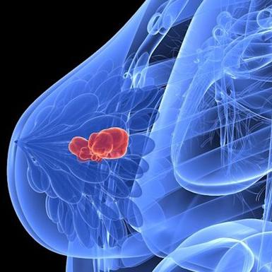 Sản phẩm công nghệ mới mang lại hy vọng cho các bệnh nhân ung thư vú